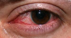 začervenanie očí - negatíva Viagry