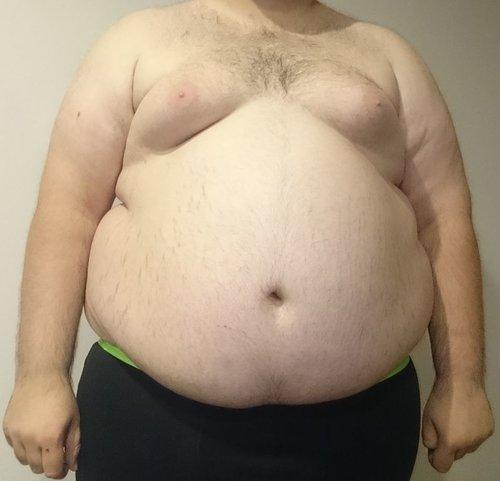 obezita_a_erekcia