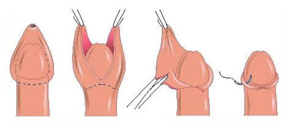 operácia fimózy