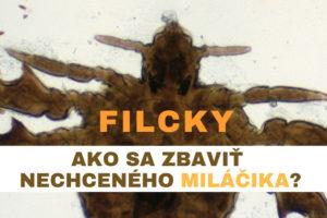 filcky