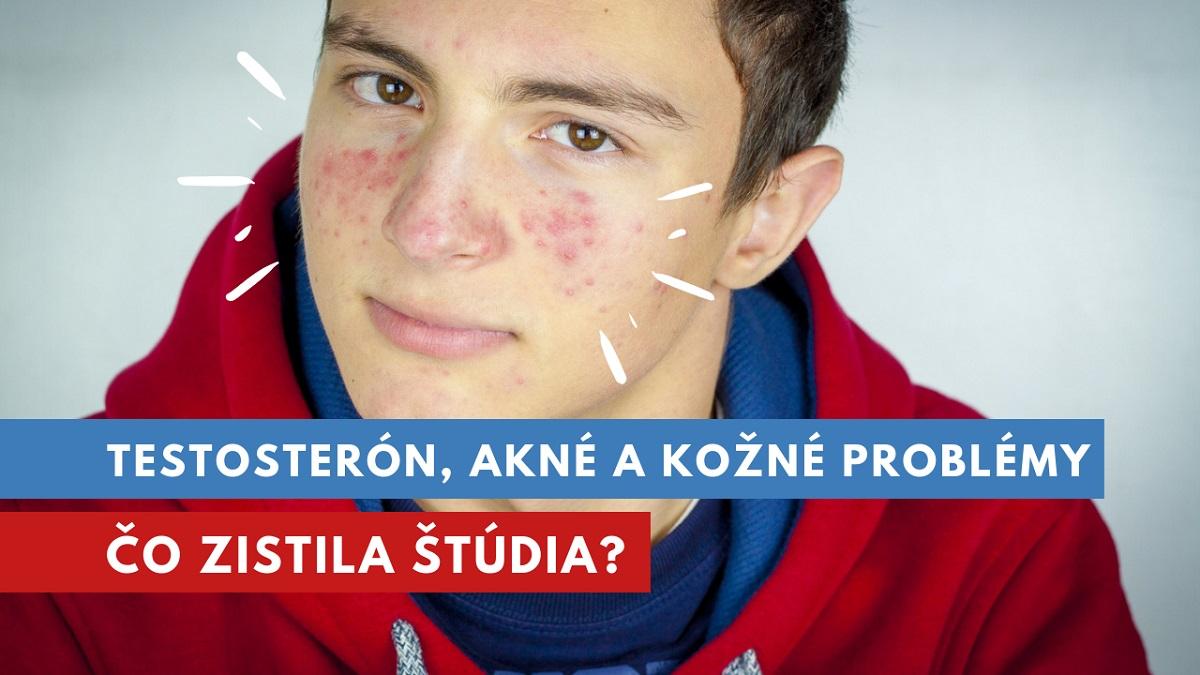 testosterón a akné
