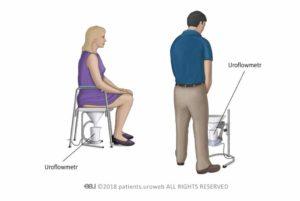 uroflowmetria u žien a mužov