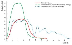 uroflowmetrická krivka