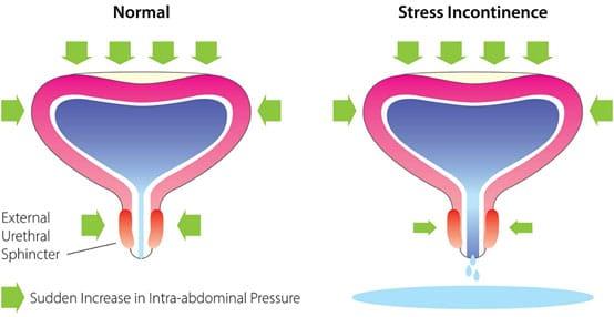 stresová inkontinencia