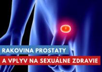 rakovina prostaty a sexuálny život